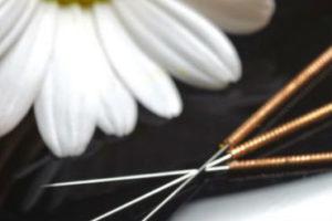 Acupuncture Melbourne