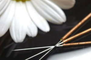 Facial Acupuncture Melbourne
