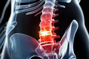 Chiropractor Melbourne CBD